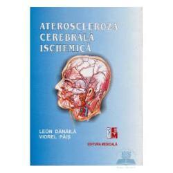 Ateroscleroza cerebrala ischemica