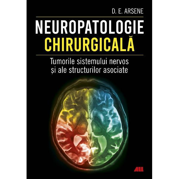Informa&539;ii la zi din domeniul neuropatologiei chirurgicaleLucrarea de fa&539;&259; se constituie ca un ghid comprehensiv care reflect&259; experien&539;a de zeci de ani a autorului &537;i cuprinde ilustra&539;ii color provenite din cazuistica proprieVolumul se adreseaz&259; în primul rând neuropatologilor &537;i în general celor responsabili în activitatea curent&259; de diagnosticul microscopic al pieselor de rezec&539;ie