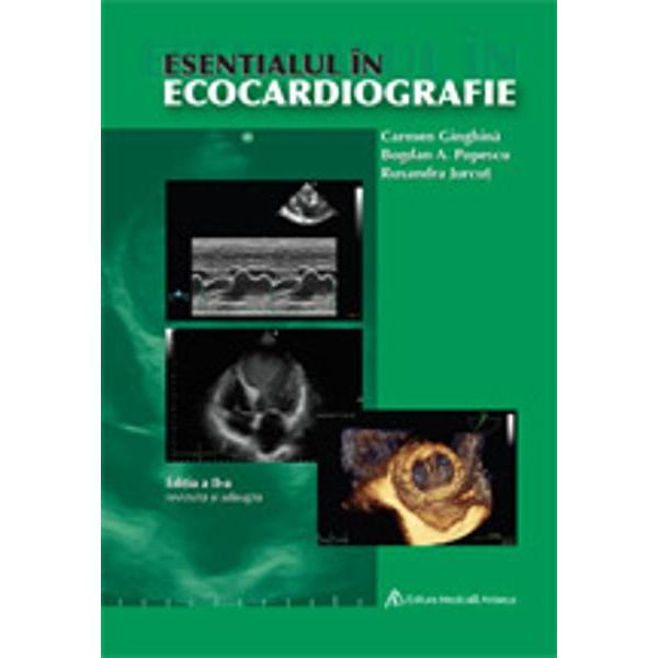 Esentialul in ecocardiografie ed a II a